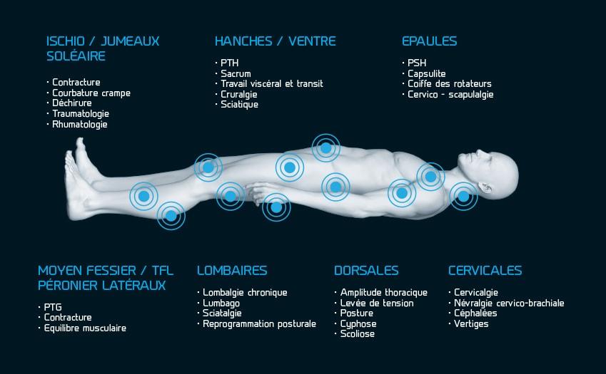 Les pathologies traitées avec Hydrojet