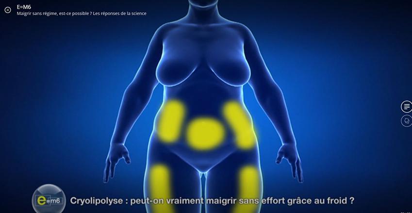 La cryolipolyse pour maigrir
