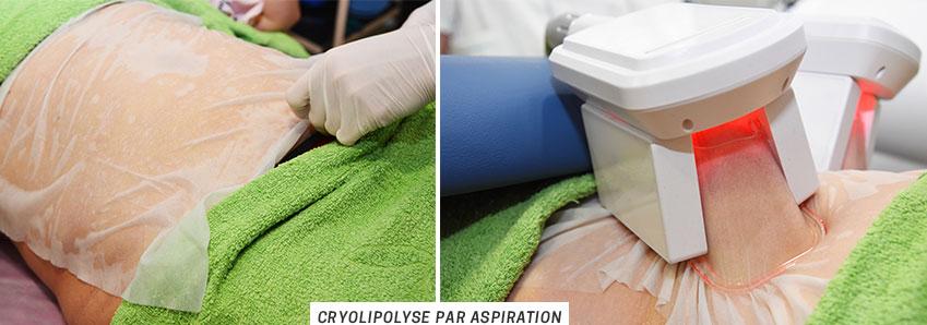 Cryolipolyse par aspiration