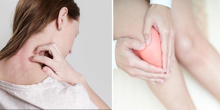 Quels sont les bienfaits de la cryothérapie sur l'eczema ?