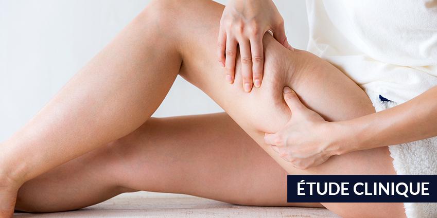 La cryothérapie corps entier et son action sur la graisse et la cellulite