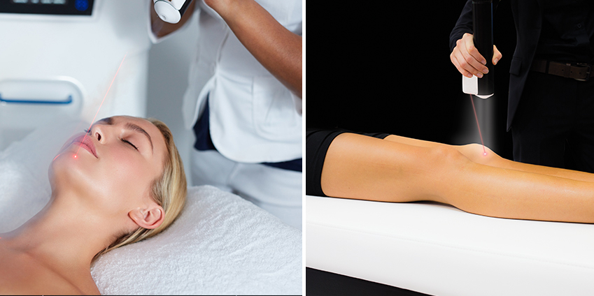 Quels sont les bienfaits de la cryothérapie sur la peau ?